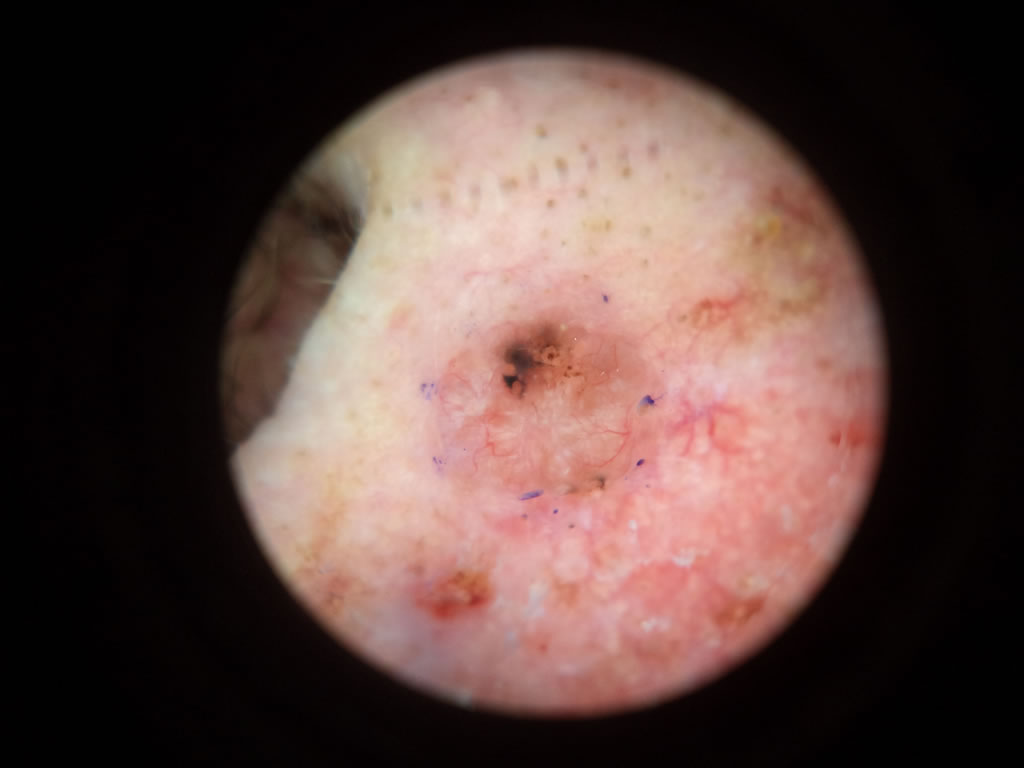 Basal Cell Carcinoma  ( BCC )